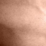 Blizny, skóra